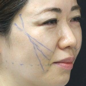 スレッドリフト、糸リフト 美容医師の体験記 その1→思ったほど痛くなかった!!の画像