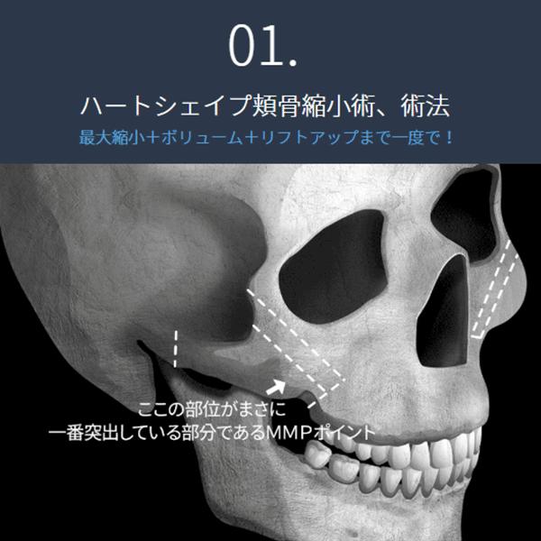 新頬骨縮小術