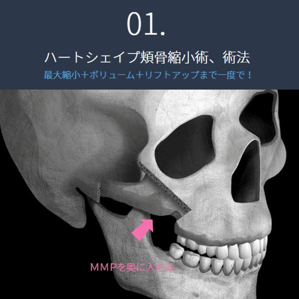 頬骨ボリュームUP