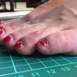 画像 O脚の人は小指が浮いています の記事より 2つ目