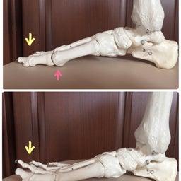 画像 O脚の人は小指が浮いています の記事より 3つ目