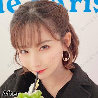 輪郭整形 鼻整形 目整形 韓国整形 韓国美容 脂肪移植