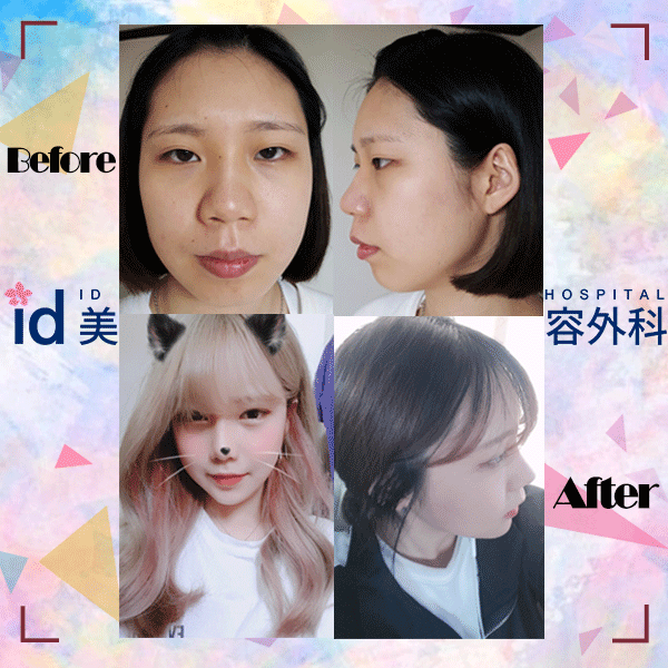 韓国id美容外科 目整形 鼻整形 輪郭手術