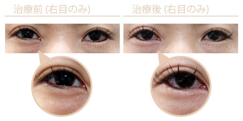 『切らないたれ目形成術(右目のみ) 他院治療後修正』
