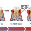 歯科用レーザー②の画像