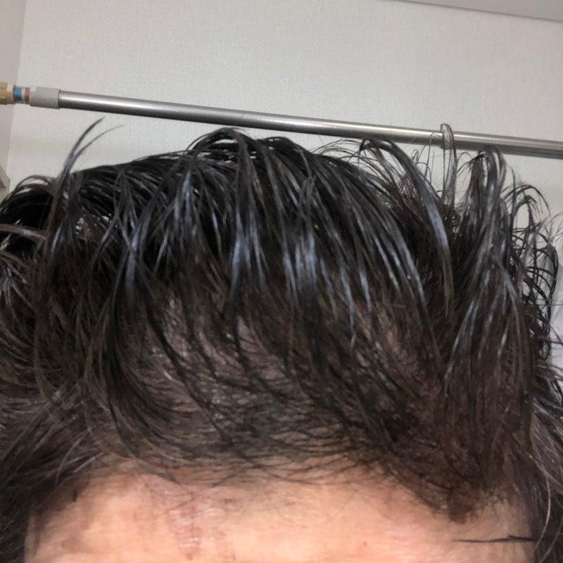 空気で染める白髪染め「ヘアボーテ エクラ ボタニカル エアカラーフォーム」 | るんるんの気まぐれ日記