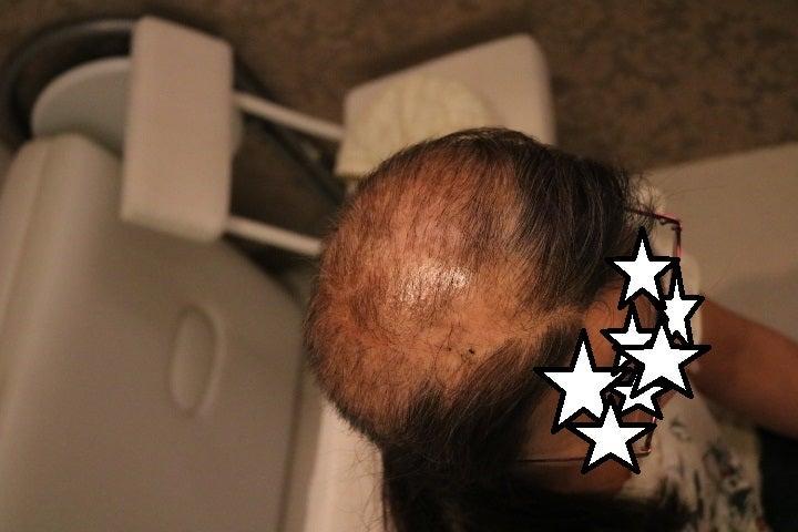 抜毛症だってお洒落を楽しめるんだよ39ー27年間の抜毛症に終止符を!の記事より