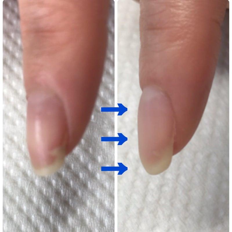 た 割れ 処置 が 爪