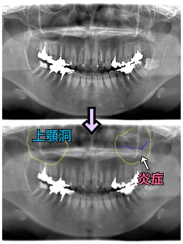 癌 症状 洞 上顎 鼻血と上顎洞癌の関係