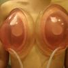『乳房拡張器』を併用したコンデンスリッチ豊胸・20代女性・BMI 17・太もものベイザー脂肪吸引の画像