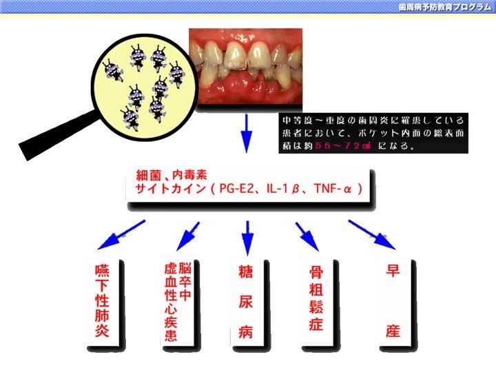 今からできる「歯周病予防のための6つの習慣」の記事より