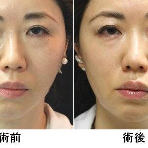 スレッドリフト、糸リフト 美容医師の体験記 その2 待望の結果編の画像