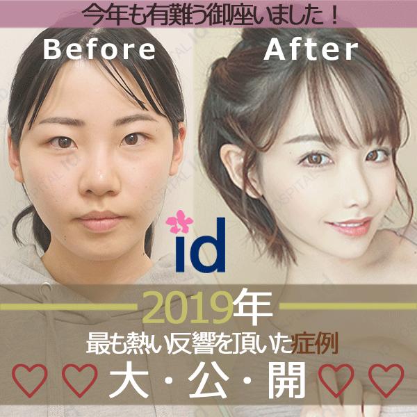 id美容外科 症例