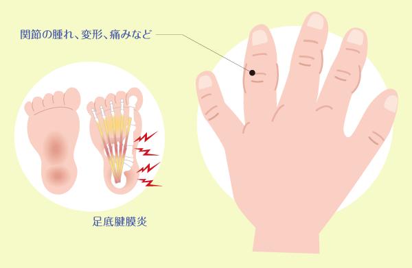 関節 性 乾癬