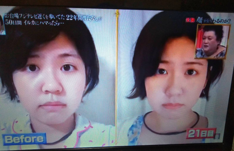 50 日間 マツコ 【マツコ/50日間で女性の顔は変わるのか】東京タワーが見える六本木の部屋に住んだら顔は変わる?結果
