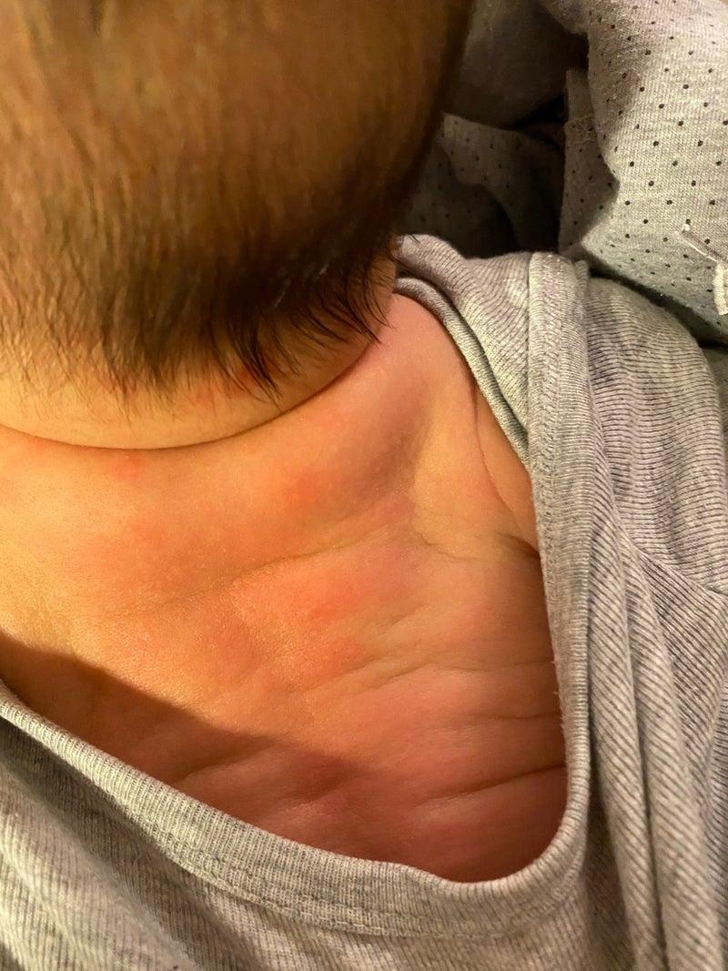 の 後ろ 湿疹 首