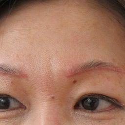 画像 眼瞼下垂 の記事より 2つ目