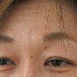 画像 眼瞼下垂 の記事より 1つ目