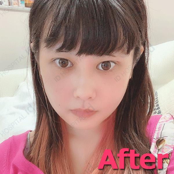 韓国 二重手術