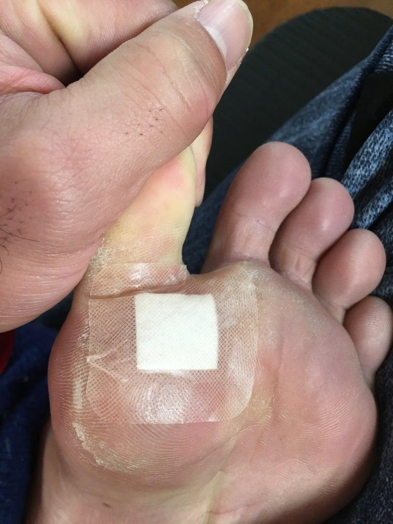 方 血豆 治し 足の裏の血豆を早く治す方法とは?!