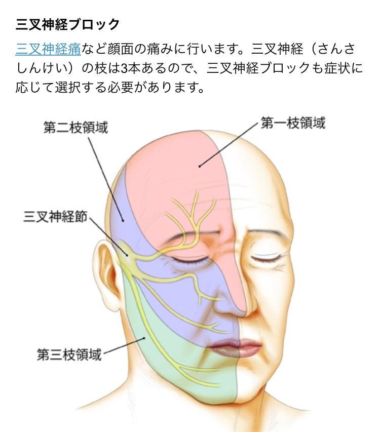 痛い こめかみ こめかみに頭痛がするのは副鼻腔炎?