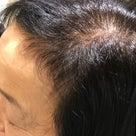 フルボ酸で発毛・育毛 トライして3か月後の記事より
