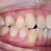 20歳 女性 上顎前突が主訴 小臼歯4本抜歯にて治療が終了しました。の画像
