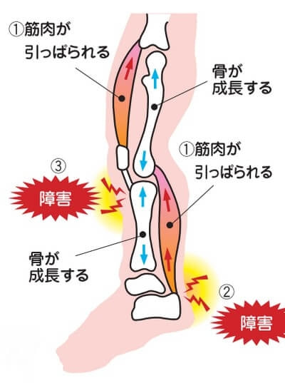 初期 症状 肉腫 骨