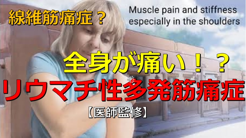 痛 症 筋 芸能人 線維