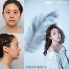 【症例写真】究極中国輪郭美人 バノバギ整形外科 ~韓国整形~の記事より