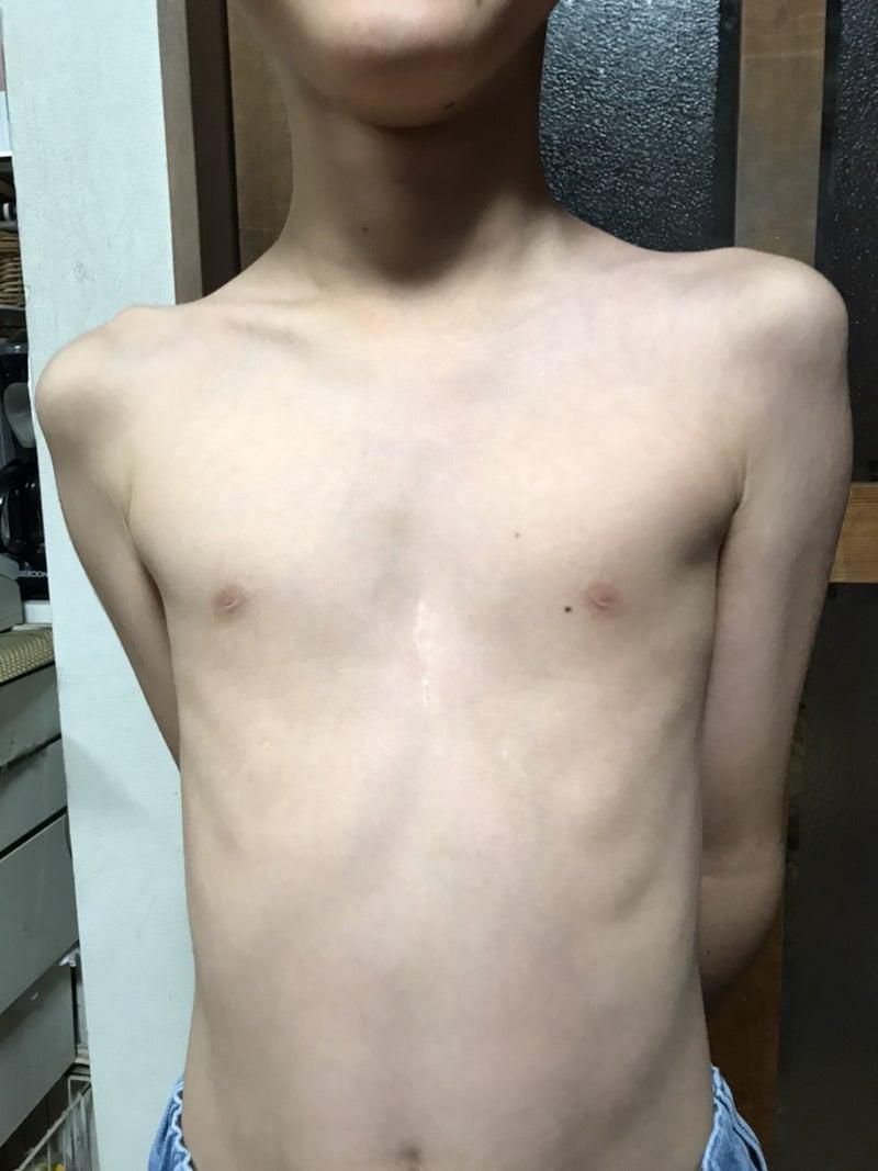 芸能人 漏斗 胸 【医師監修】漏斗胸の症状が、自然に治ることはあるの?