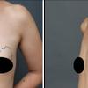 脂肪のしこり除去・30代女性・BMI 20の画像