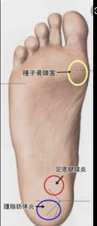 裏 付け根 の が の 親指 痛い 足