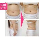 今からキャビフル&脂肪冷却で痩身!の記事より
