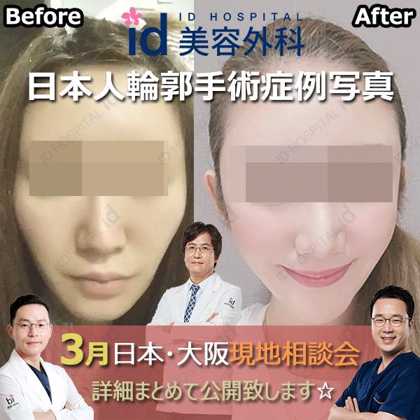 3月 日本カウンセリング id美容外科