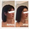 小顔リフトアップの画像