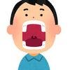 何かと乾燥しがちな冬の季節。お口の中の乾燥を唾液で防ぐ。の画像