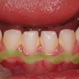 画像 集団歯科検診のむし歯0信じて大丈夫? の記事より 1つ目