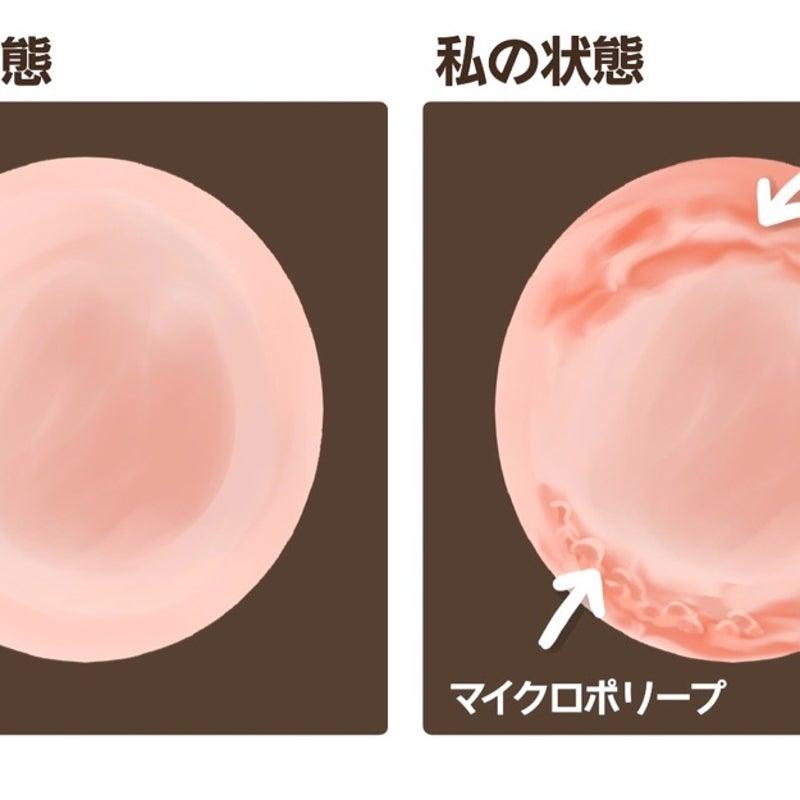 ポリープ 子宮 内 膜