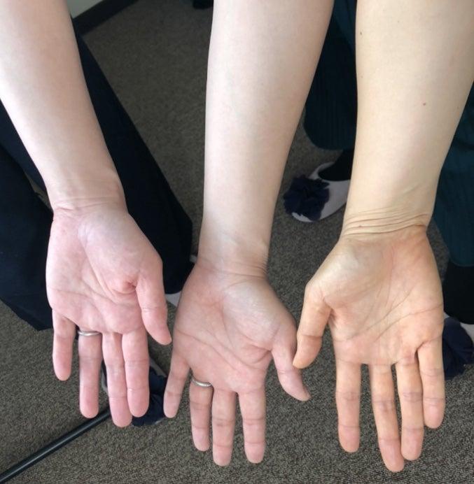 イエローベースとブルーベースの肌の比較