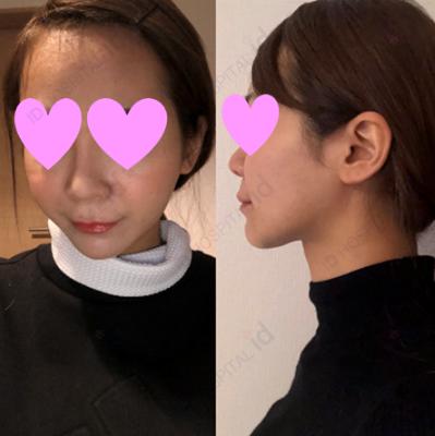 骨切り 韓国 id