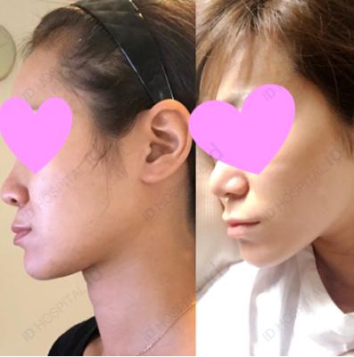両顎手術 id美容外科