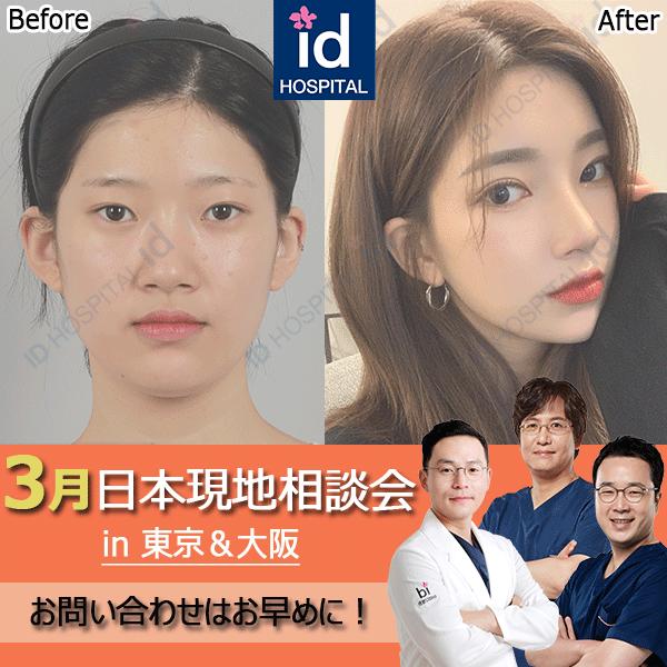 3月日本現地相談会 東京 大阪 id美容外科