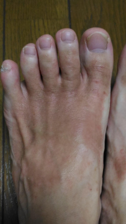 痒く が なる 走る 足 と