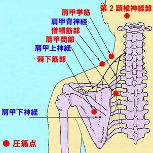 背中の痛みの原因は実は首が原因でしたという話の画像