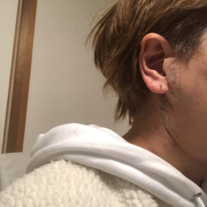 腫瘍 腺 耳 下