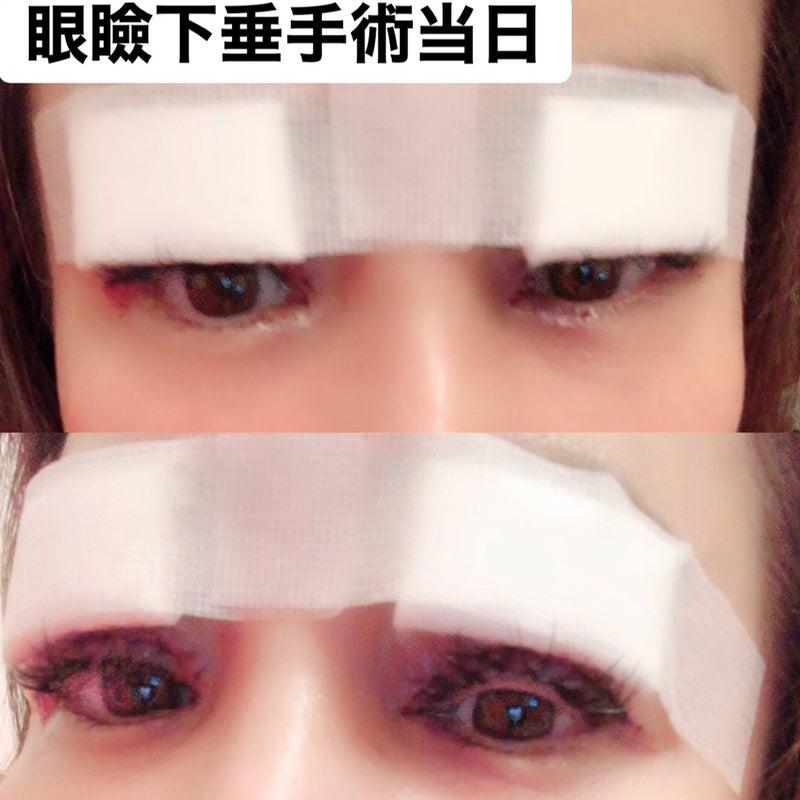 芸能人 眼瞼下垂 手術