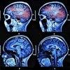 脳震盪スポーツ + 調和 + 改革 + テクノロジー Concussion sportの画像