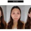 【韓国整形/韓国美容外科】3D頬骨縮小術+エラ&顎先整形+鼻整形【症例あり】
