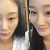 ウォンジン整形外科♥輪郭3点(頬骨+エラ+顎先)♥体験談をご紹介♪